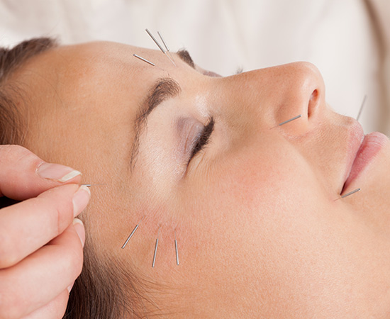 Acupuncture with Elaine Geary
